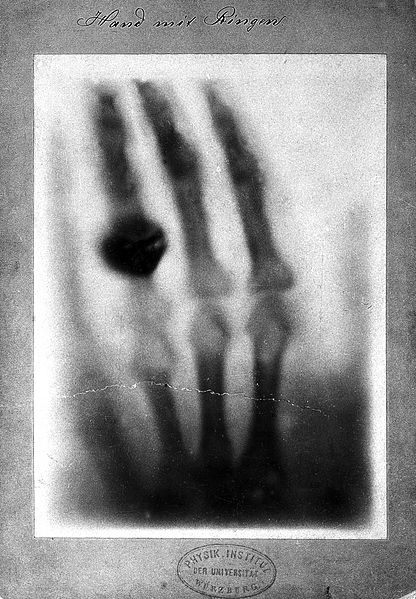 File:Radiograph of hand by W.K. Roentgen Wellcome L0000622EB.jpg