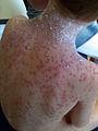 Severe chickenpox.jpg