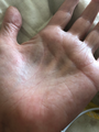 Steroid atrophy palms.png
