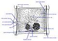 Taenia solium 1.jpg