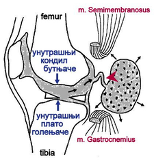 Valvular mechanism of Baker cyst.png
