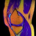 08 Knee MRI T1W TSE R T2W TSE G PDW DR TSE B.jpg