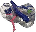 3D printed liver model for decision making.jpg