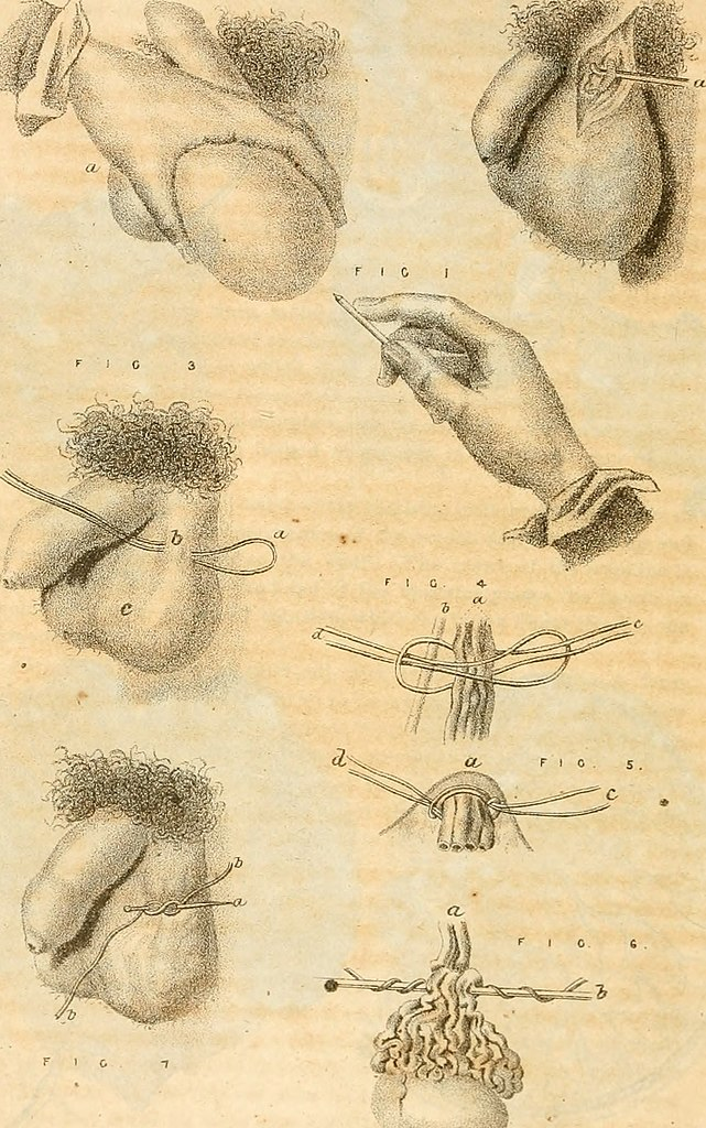 File:A manual of military surgery, for the use of surgeons in the Confederate States Army; with explanatory plates of all useful operations (1864) ...