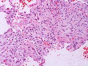 Acute interstitial pneumonia (AIP) Idiopathic DAD Case 121 (4565836430).jpg