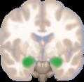 Amygdala frontal view.png