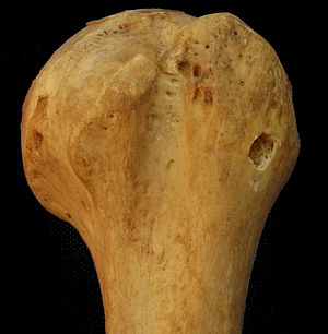 Bicipital groove - Anterior of the Left Humerus Head. Bicipital groove seen in the middle.