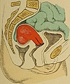 Atlas and epitome of gynecology (1900) (14761573744).jpg