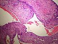 Bone AneurysmalBoneCyst 2 PA.JPG