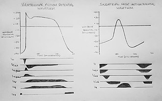 Cardiac action potential - Figure 2a: Ventricular action potential (left) and sinoatrial node action potential (right) waveforms. The main ionic currents responsible for the phases are below (upwards deflections represent ions flowing out of cell, downwards deflection represents inward current).