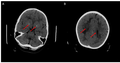 Cerebral Folate Deficiency - Cerebral CT-scan at 4 years old.png