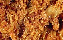 Ulcerative colitis - Wikipedia