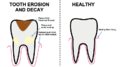 Diagram of tooth erosion.png