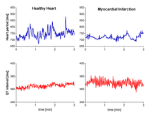Examples of heart rate and QT interval variability.