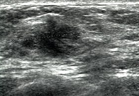 Breast Ultrasound Wikipedia