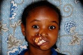 sygdomme i afrika