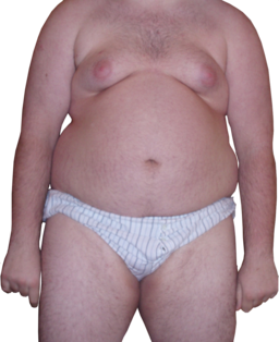 Obese Man - Front View - Transparent