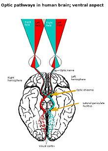 Contralateral Brain