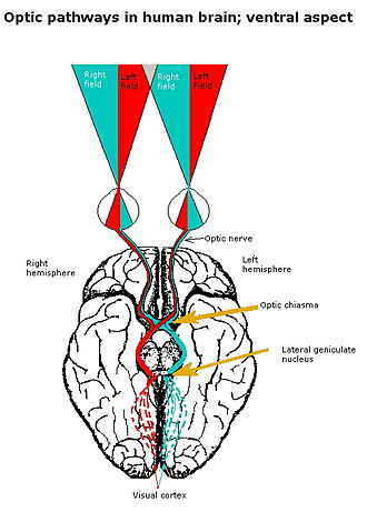 Glossary of neuroanatomy - Optic chiasm in the human brain, showing pathways conveying information from the visual field of each eye to the contralateral visual cortex