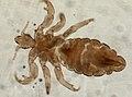 Pediculus humanus (YPM IZ 093559).jpeg