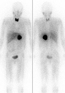 pheochromocytoma wikipedia