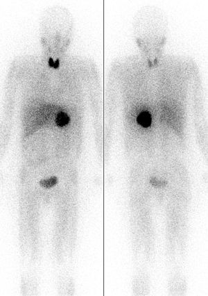 Isotopes of iodine - A Pheochromocytoma is seen as a dark sphere in the center of the body (it is in the left adrenal gland). Image is by MIBG scintigraphy, with radiation from radioiodine in the MIBG. Two images are seen of the same patient from front and back. Note the dark image of the thyroid due to unwanted uptake of radioiodine from the medication by the thyroid gland in the neck. Accumulation at the sides of the head is from salivary gland uptake of iodide. Radioactivity is also seen in the bladder.