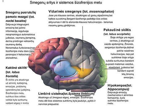 Paranoidinė šizofrenija