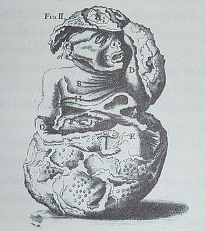 Johann Georg Steigerthal - Illustration from Steigerthal's account of the Leinzell lithopedion.