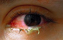 conjunctivitis - wikipedia, Skeleton