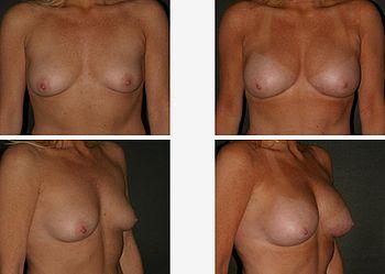 Saline breast deflated