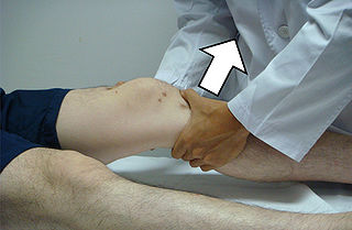 Lachman test clinical test to diagnose knee ligament injury