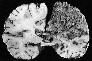 cerebral arteriovenous malformation wikipedia