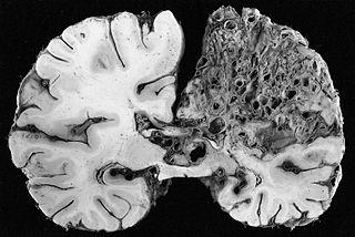 Cerebral arteriovenous malformation Medical condition