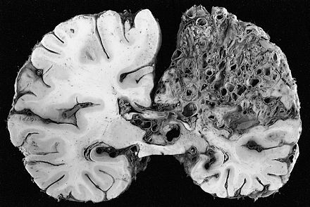 This coronal cross-section of a brain reveals a significant arteriovenous malformation that occupies much of the parietal lobe. AVM grossly.jpg