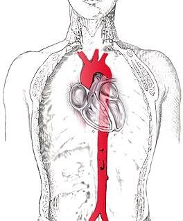 Aorta scheme.jpg