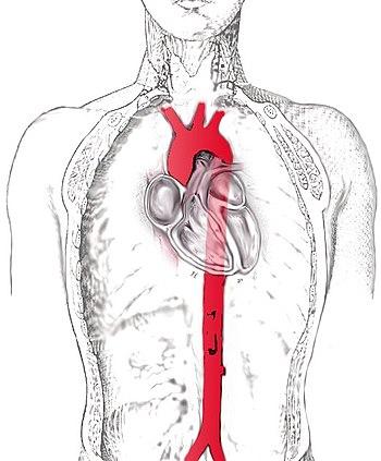 abdominal aortogram with runoff cpt code