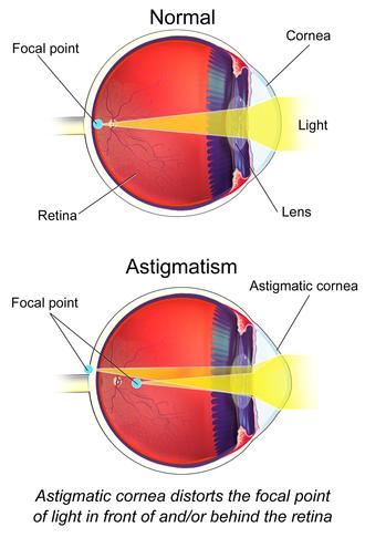 Astigmatism (optical systems) - Visual astigmatism (not optical)