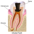 Blausen 0864 ToothDecay.png