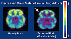 PET images showing brain metabolism in drug addicts vs controls
