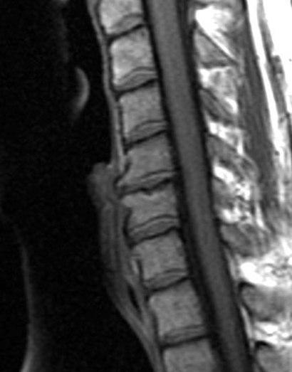 Cervical Spine MRI showing degenerative changes closeup.jpg