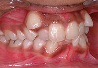 Если у детей маленькая челюсть, зубы могут начать расти в сторону.