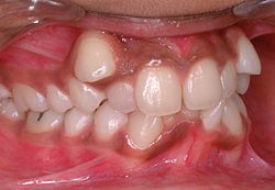 definition of malocclusion