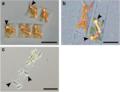 Cyanobacteria in symbiosis with diatoms.webp