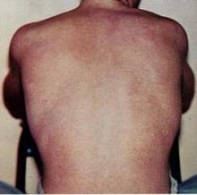 Photograph of a person's back with the skin exhibiting the characteristic rash of dengue fever