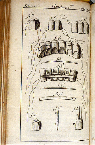Pierre Fauchard - Early 18th century diagram made by doctor Fauchard on his book where he shows the procedure involved in teeth restoration.
