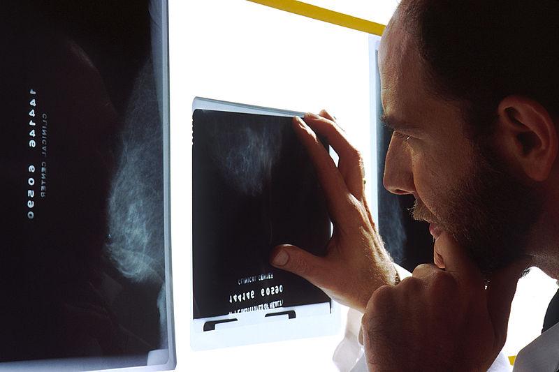 File:Doctor viewing mammogram.jpg
