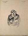 Edouard Brissaud. Reproduction of drawing (?) by J. Veber. Wellcome V0000772.jpg