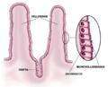 Esquema del epitelio del intestino delgado.png