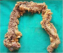Familial adenomatous polyposis - Wikipedia