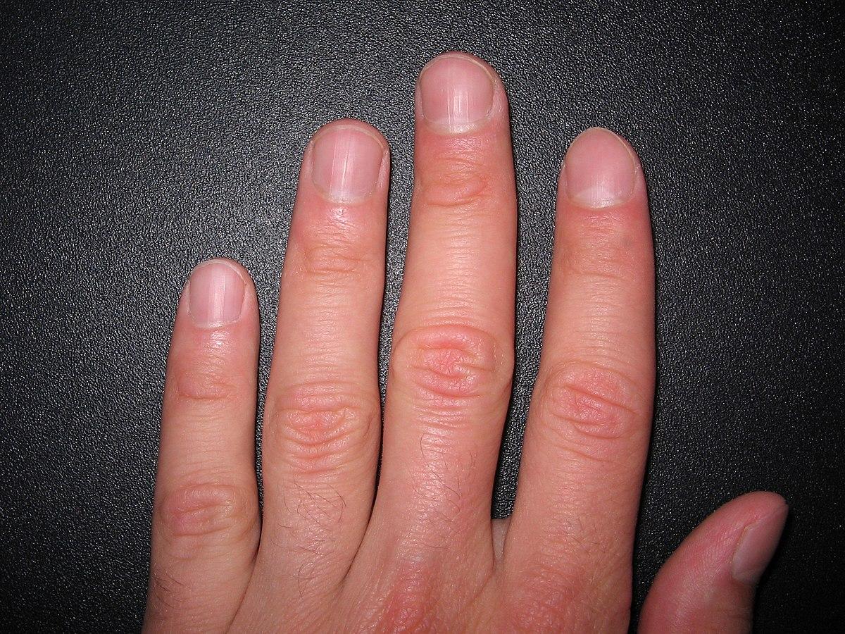 Отсутствие лунок на ногтях